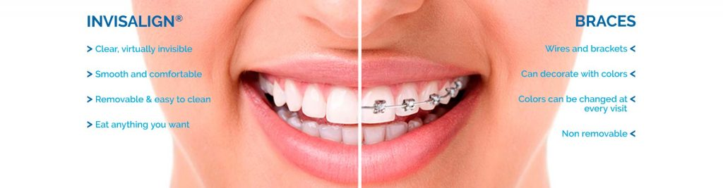Invisalign braces images Top Nova Orthodontics Potomac Falls Ashburn VA