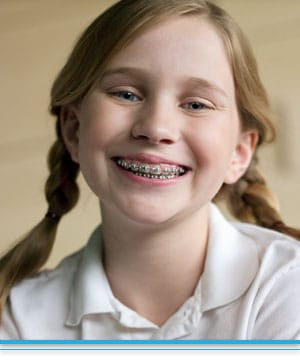 About Braces Top Nova Orthodontics Potomac Falls Ashburn VA