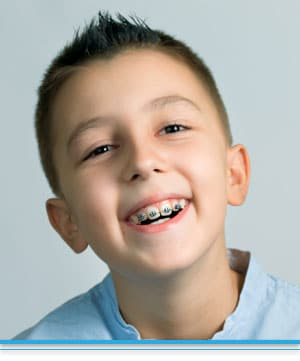 Early Orthodontic Treatment Top Nova Orthodontics Potomac Falls Ashburn VA