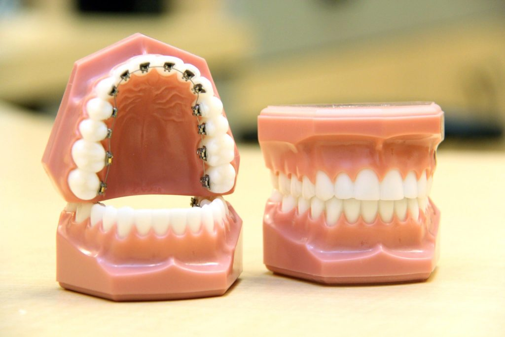 Top Nova Orthodontics